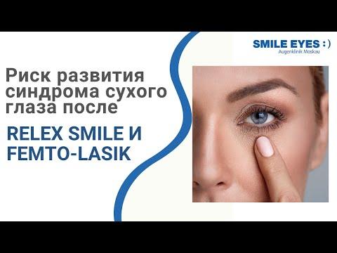 Риски развития синдрома сухого глаза (ССГ) после ReLEx SMILE и Femto-LASIK
