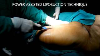 Liposuction In Hyderabad Thumbnail