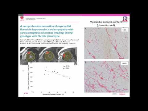 EuroCMR 2016 Debate: Tissue characterization using CMR mapping techniques are ready for prime time