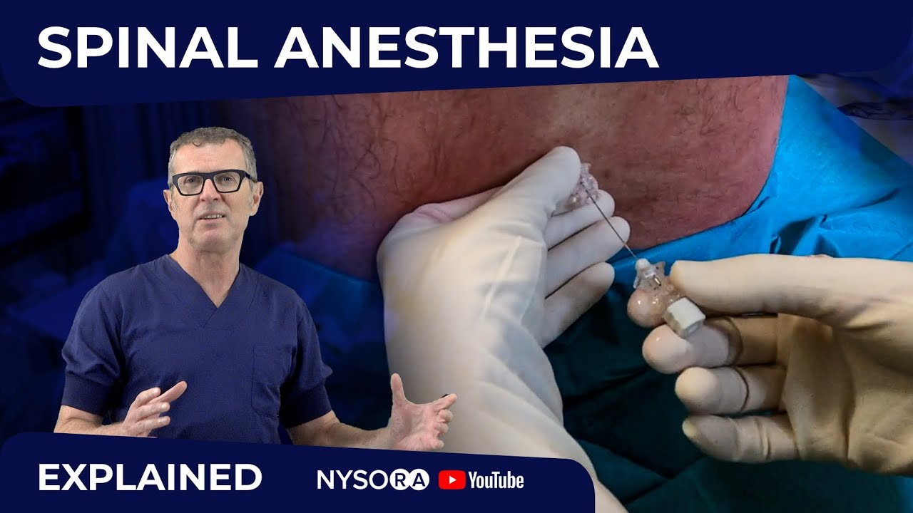 Download Spinal Anesthesia Explained Part 1- Crash course with Dr. Hadzic
