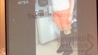 Marfan Syndrome Shoe Modification Case Study by Bedford Orthotics