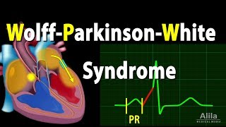 Wolff-Parkinson-White Syndrome Pathophysiology, Pre-Excitation and AVRT, Animation