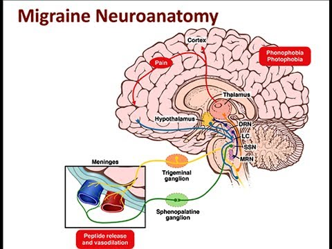 Migraine [Lecture] [Neurology]