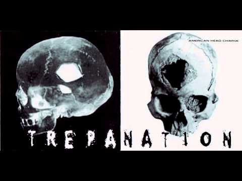 Reach And Touch Trepanation
