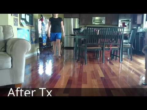 Slow Motion Gait - Right Foot Pain Before and After Treatment