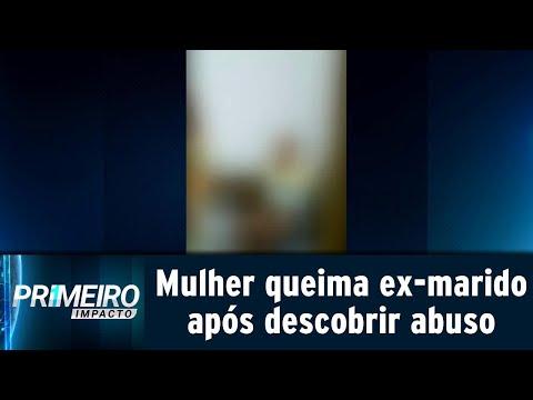 VÍDEO: Mulher descobre que ex-marido abusava da filha e queima partes íntimas dele
