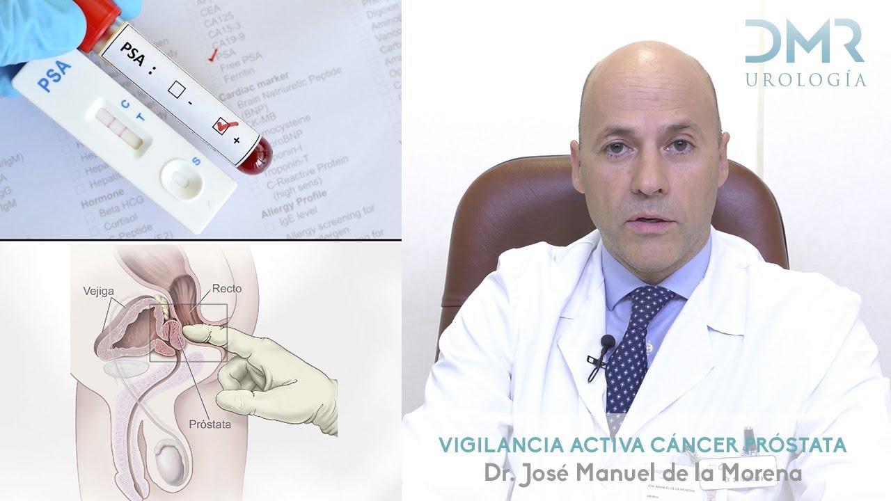 Papiloma intraductal de mama tratamento - Cancer de prostata dados