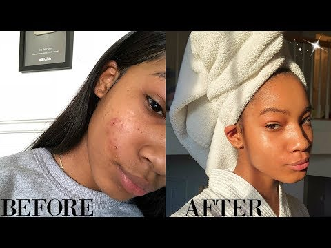 How to get perfect skin for back to school 2018!