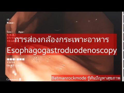 การส่องกล้องกระเพาะอาหาร Esophagogastroduodenoscopy EP.1