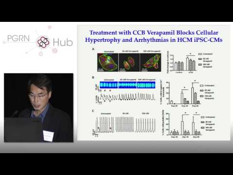 Patient-Derived Induced Pluripotent Stem Cells in Cardiovasc