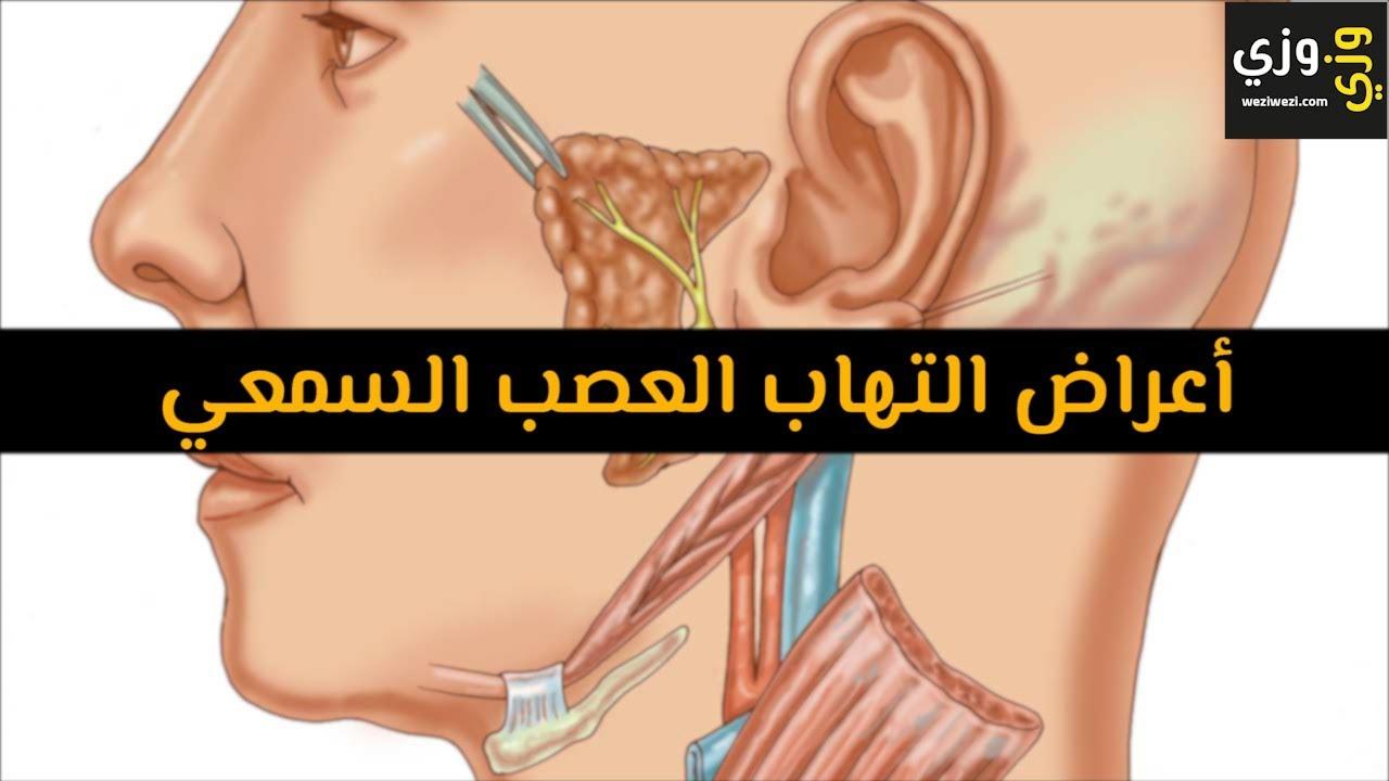 أهم أعراض التهاب العصب السمعي Youtube
