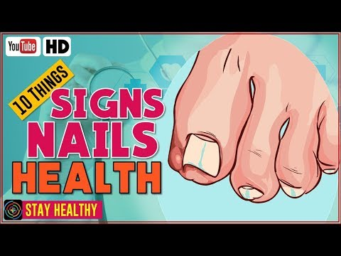 10 Things Your Nails Can Reveal About Your Health