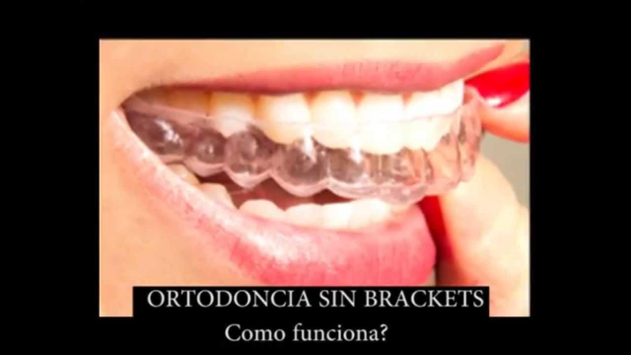 Como funciona la ortodoncia sin brackets youtube - Como alinear los dientes en casa sin brackets ...