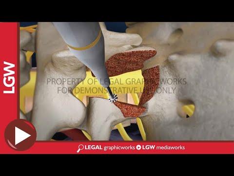 Lumbar Fusion Of L5 - S1 Transforaminal Interbody Animation Recreation