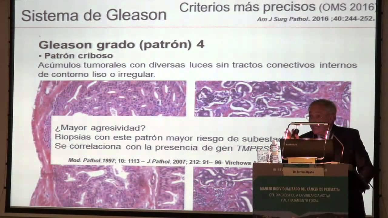 tratamientos de próstata gleason 4 3