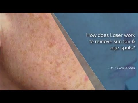 Laser Treatment For Sun Tan  And Age Spots - Dr.K. Prem Anand | Sun Tan Removal In Bangalore, India