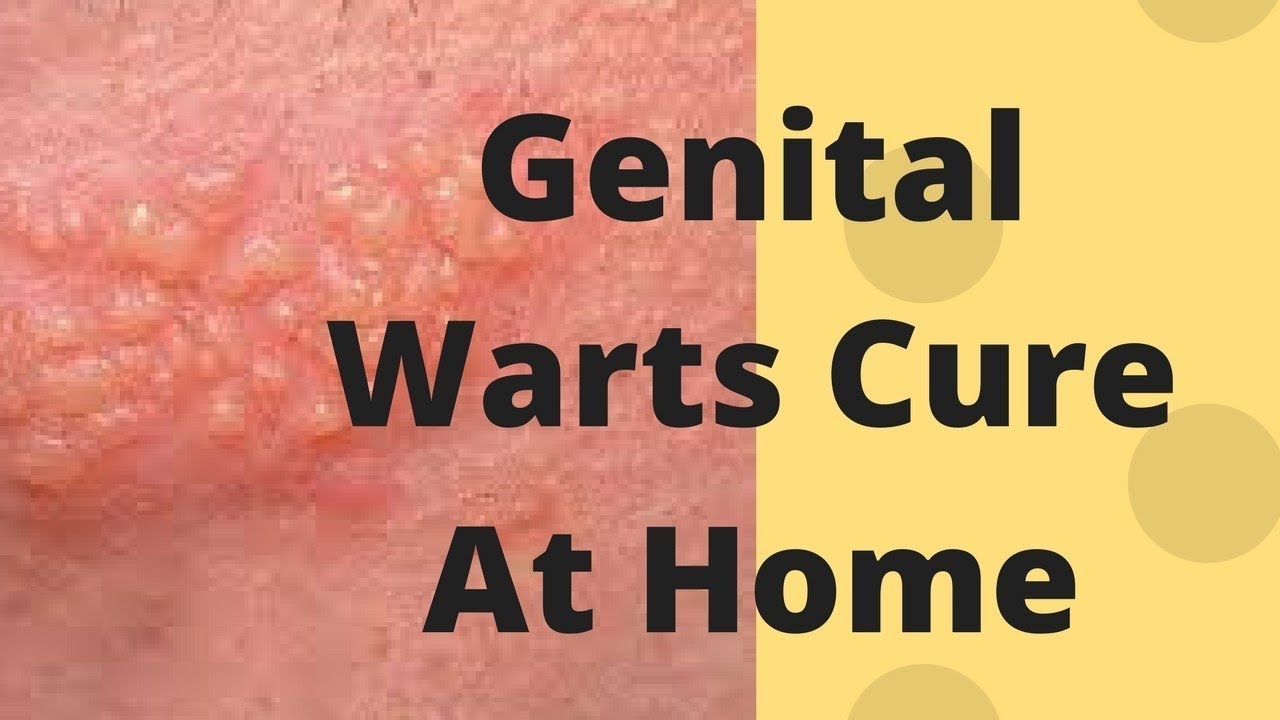 Genital Warts Cure at Home