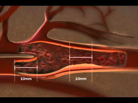 Carotid IMT educational video.   How the test is performed.
