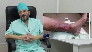 варикозная болезнь нижних конечностей - симптомы, диагностика, лечение