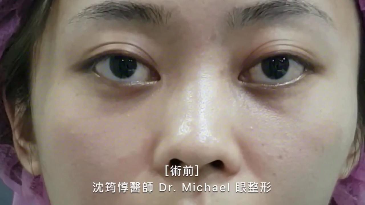綜合眼整型手術 (縫雙眼皮 X 提眼瞼肌 X 上下眼窩補脂肪 X內開眼袋 X 蘋果肌補脂肪)—沈筠惇醫師 Dr. Michael 眼 ...