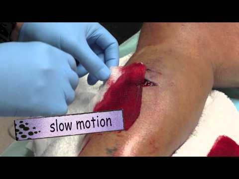 Part 1: Leg Laceration SQUIRT