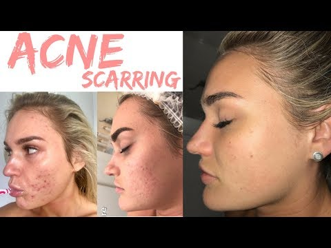 Treating my ACNE Scars II Treatments, skin care routine & supplements