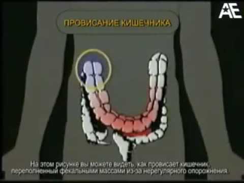 Себорейный дерматит. Причины, симптомы, признаки