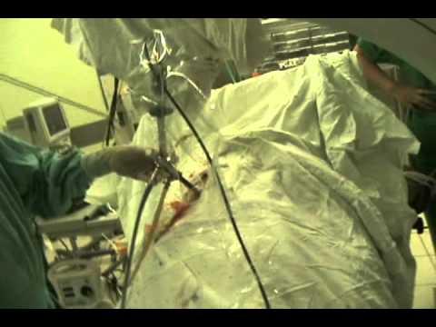Nội soi lấy sỏi thận qua da (PCNL: percutaneous nephrolithotripsy) ở Huế