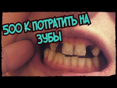 Шок! Без зубов в 30 лет. Катастрофа которую я решил исправить