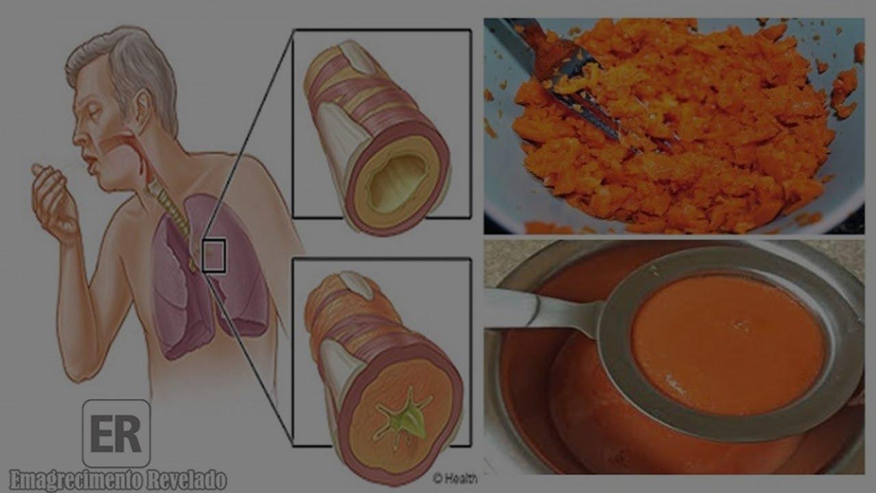 xarope caseiro de cenoura para tosse com catarro