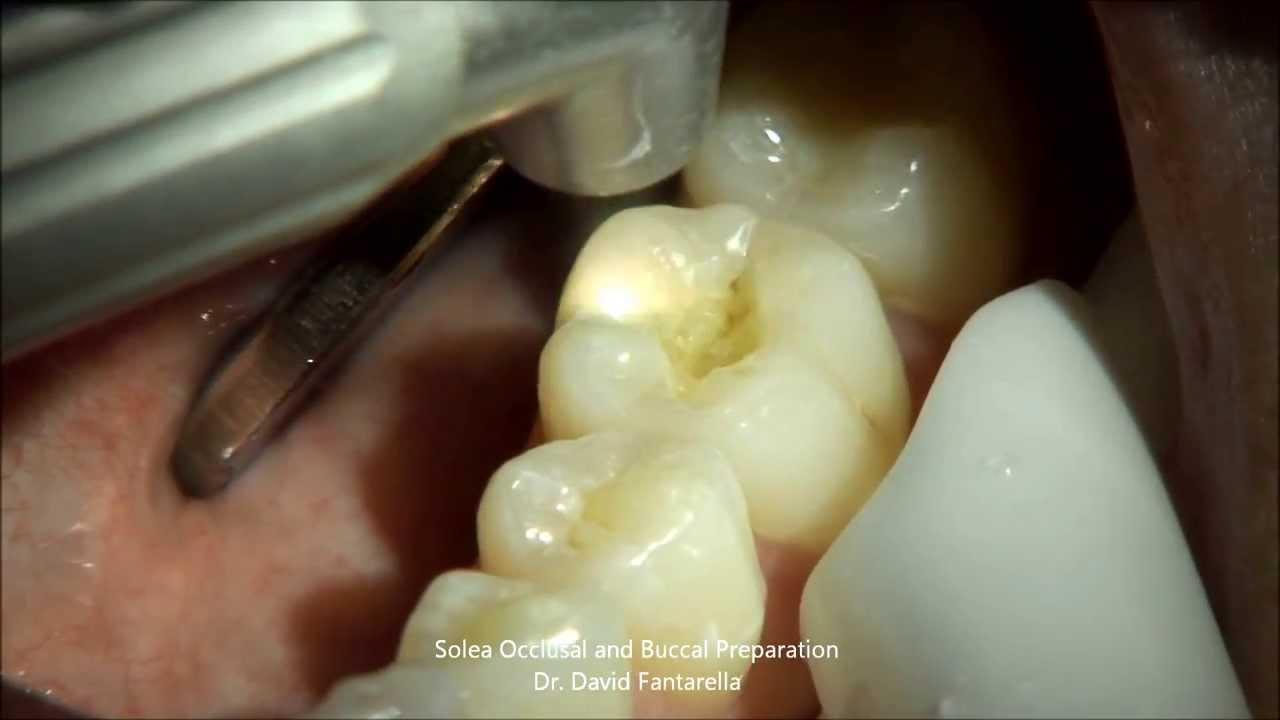 Solea Laser Occlusal Preparation - Dr  David Fantarella