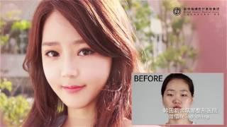 不到一年,整形后的她竟然变成......韩国整容前后惊人对比 被爆再現人形 検索動画 21