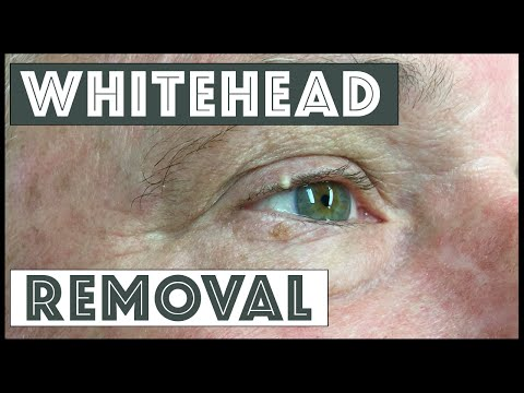Removing Whitehead From The Conjunctival Rim
