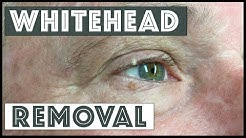 hqdefault - White Pimples On Upper Eyelid
