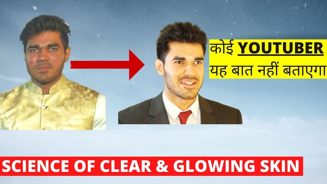 Ultimate Guide To Fight Acne, Pimples, Dark Spots NATURALLY   How To Get Clear Skin For Men & Wo