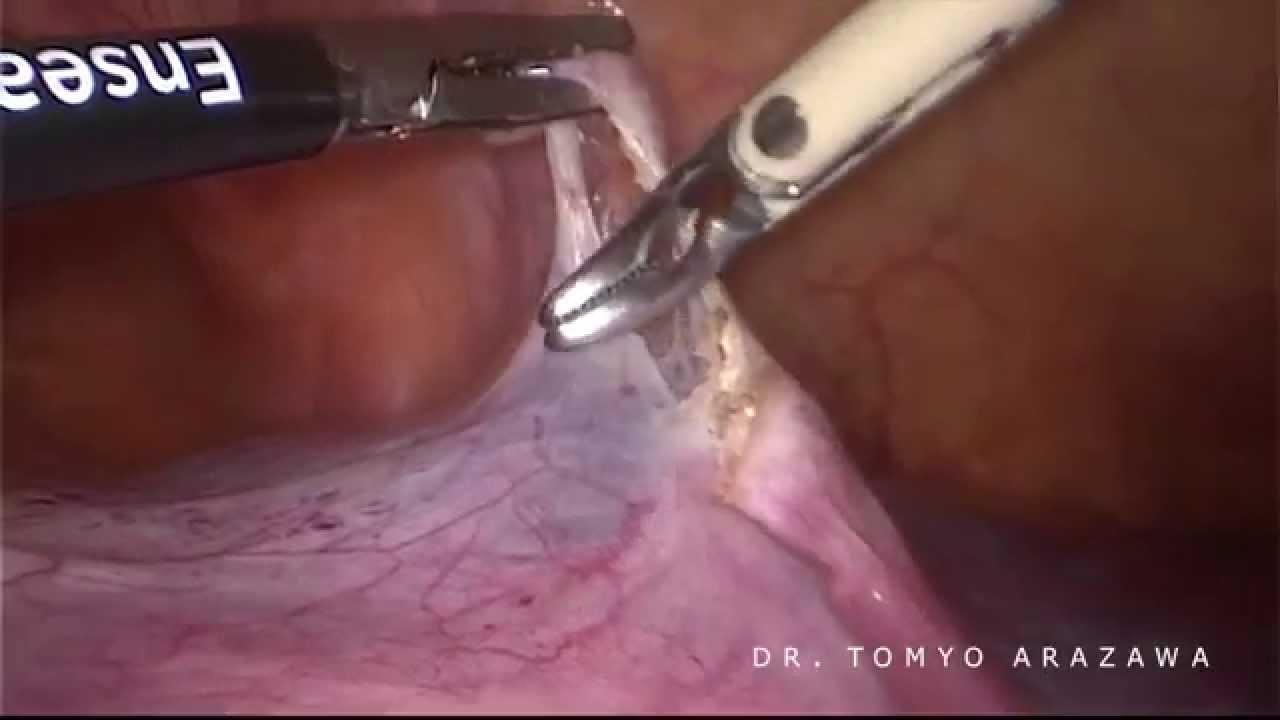 Histerectomia Laparoscópica em útero de 1900ml - YouTube