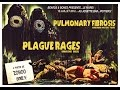 PLAGUE RAGES + PULMONARY FIBROSIS @ Poitiers