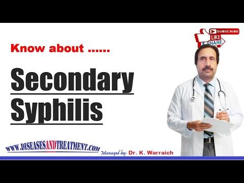 Secondary Syphilis : Causes, Diagnosis, Symptoms, Treatment, Prognosis