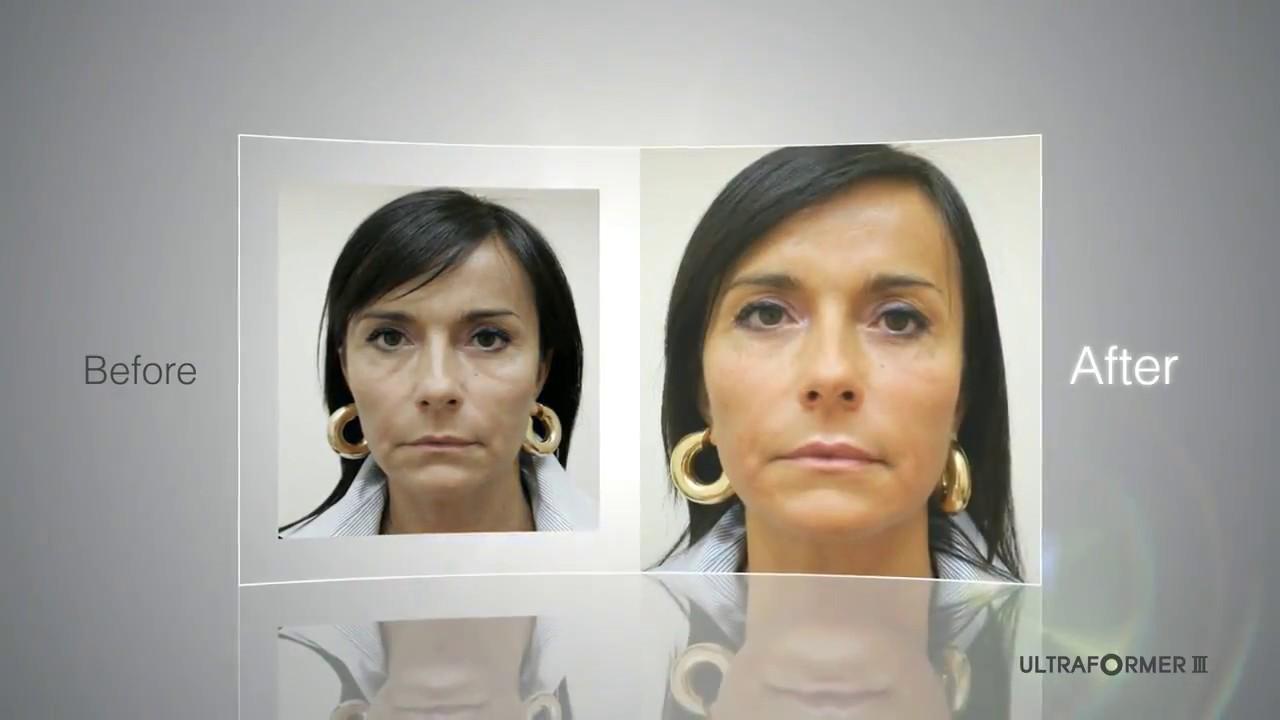 Fastest selling HIFU Machine 2017 Skin Tightening & Lifting by ULTRAFORMER  III