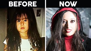 Girls Skin Begins To Harden Plastic - 18 Years Later It Turns Her Into A 'Living Doll'