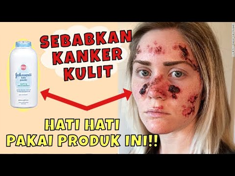 hati-hati!!-5-bahan-kosmetik-berbahaya-penyebab-kanker-/jerawat..