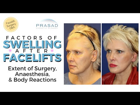 Contributing Factors of Extended Swelling after a Facelift