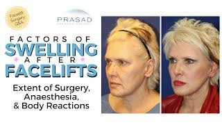 Contributing Factors of Extended Swelling after a Facelift thumbnail