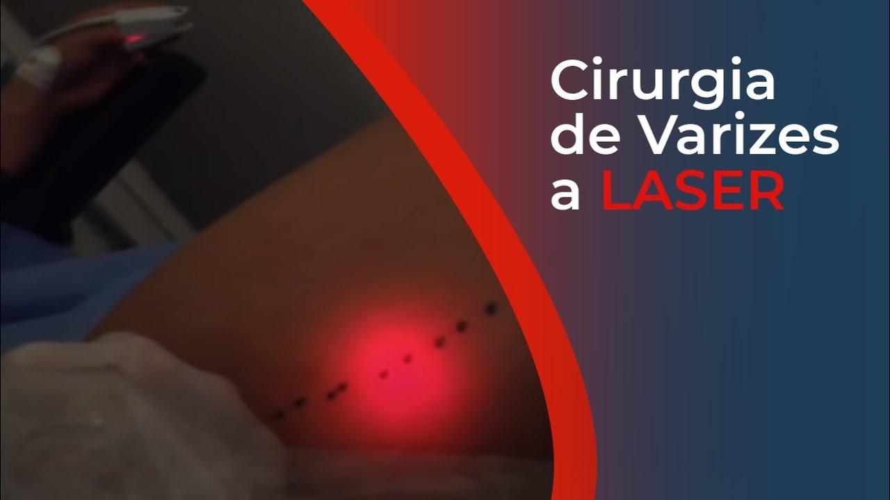 cirurgia a laser varizes