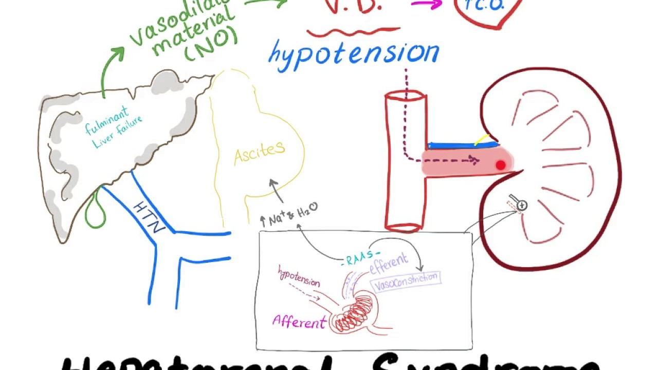 hepatorenal syndrome mechanism - youtube, Skeleton