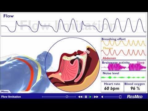Understanding Sleep Disordered Breathing