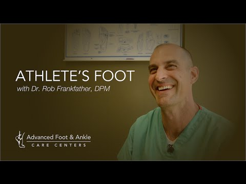 Athletes Foot – What It Is & How To Cure Your Itchy Foot