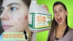 hqdefault - How To Use Aloe Vera Juice For Acne