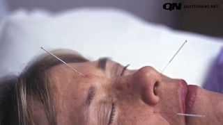 agopuntura e malattie autoimmuni