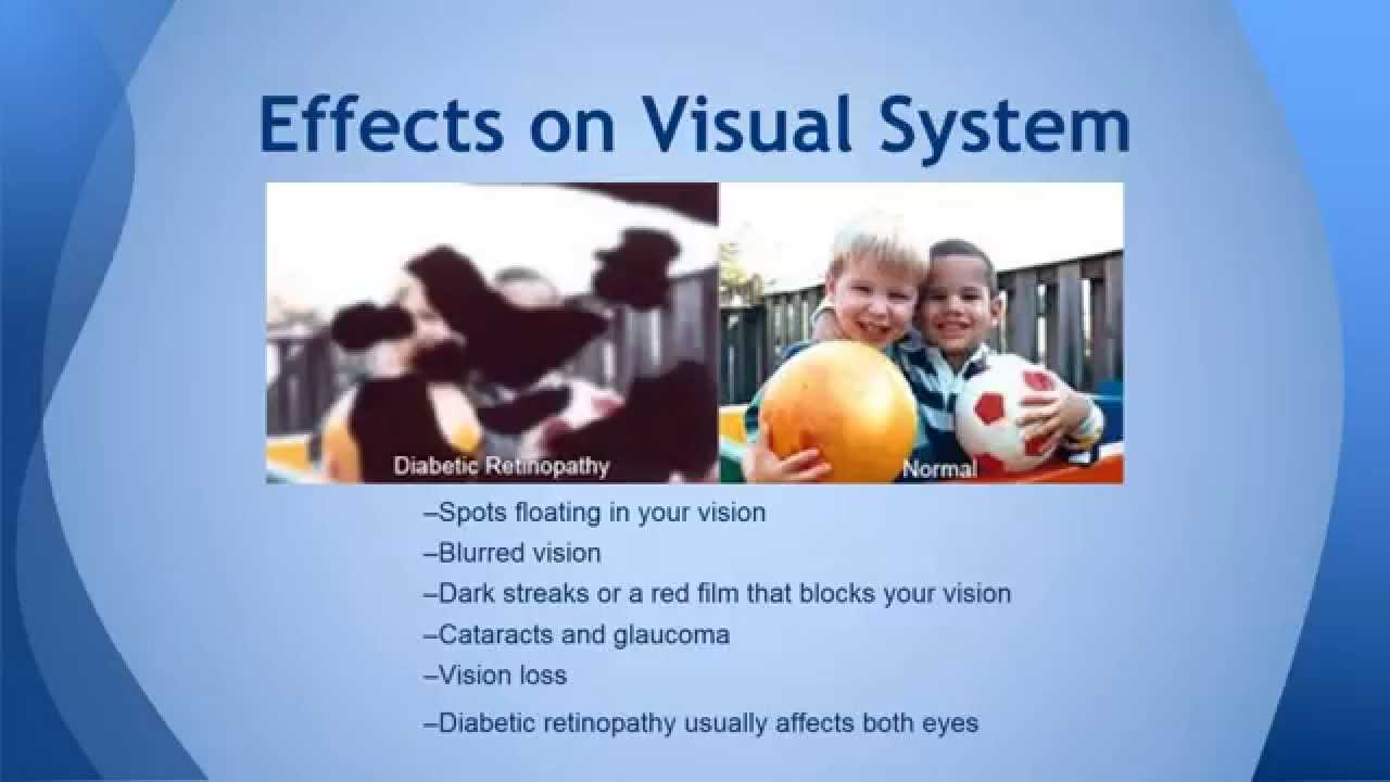 Diabetic Retinopathy Powerpoint - YouTube